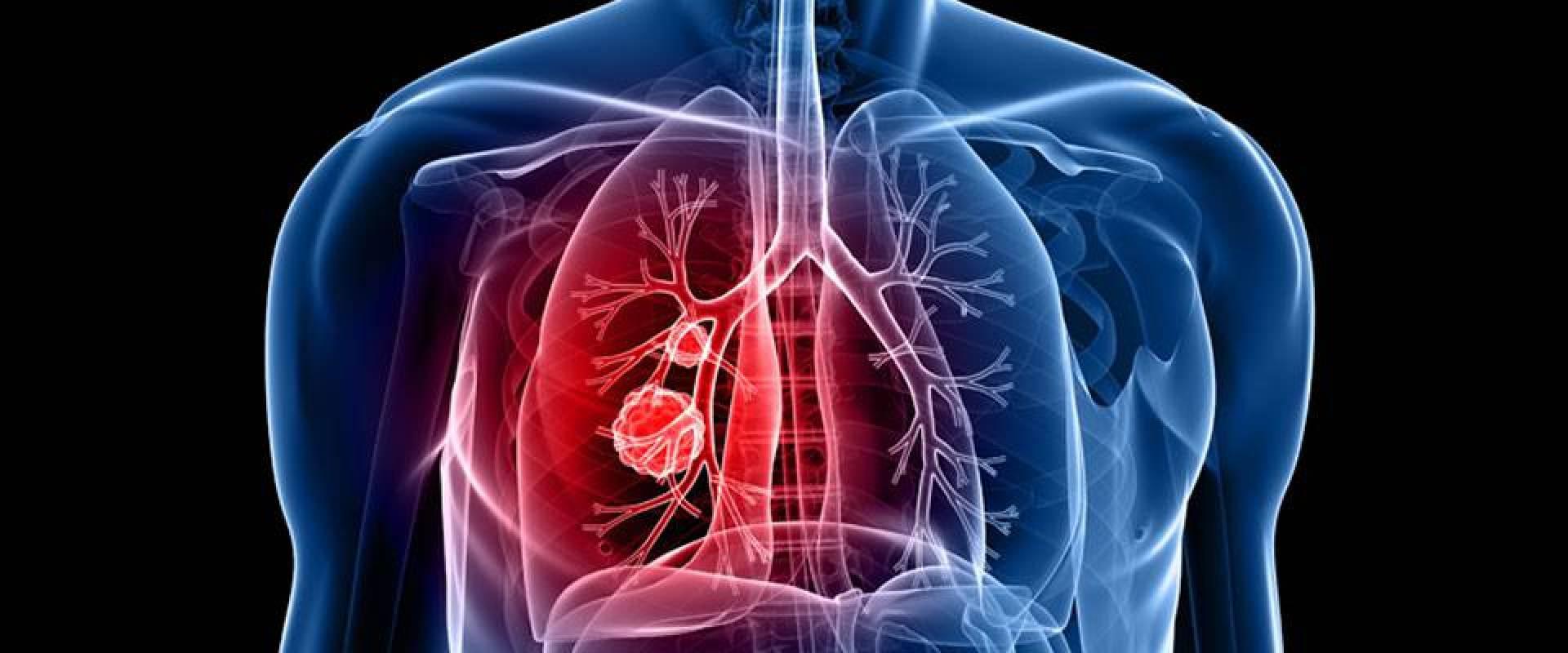 اختبار دم للمدخنين يتنبئ بـ«سرطان الرئة» قبل 4 سنوات من ظهور الأعراض