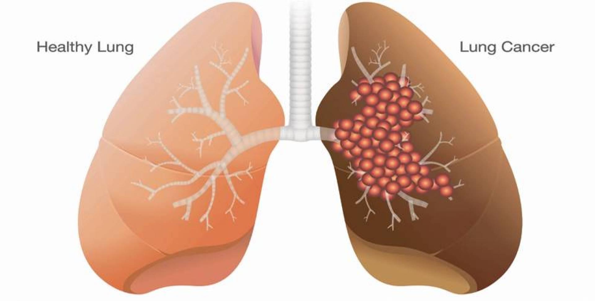 7 مسببات لسرطان الرئة.. لغير المدخنين