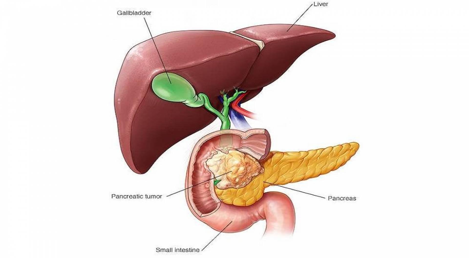 علامات وأعراض سرطان البنكرياس