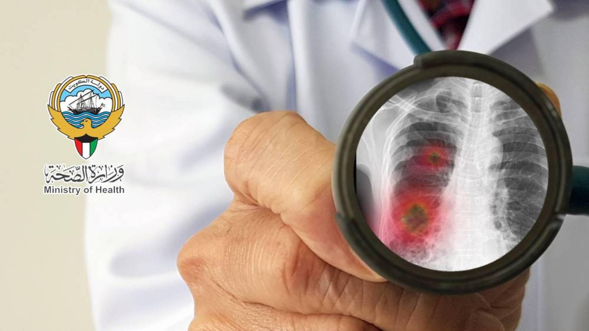 «الصحة»: ارتفاع عدد الإصابات بفيروس كورونا إلى 26 حالة في الكويت