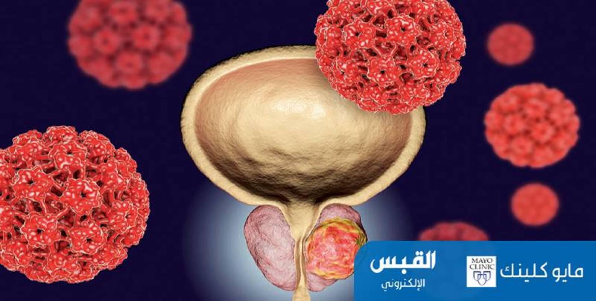 المعالجة الكثبية للبروستاتا.. تقتل الخلايا السرطانية