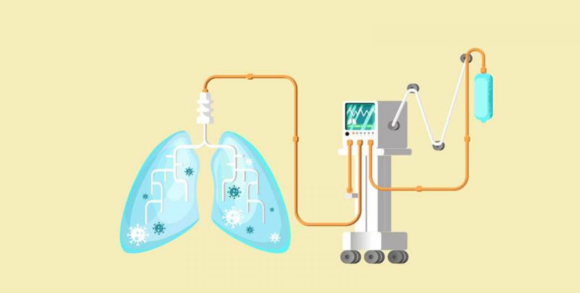 88 % ممن وُضِعُوا على «التنفس الصناعي» تُوفوا في نيويورك