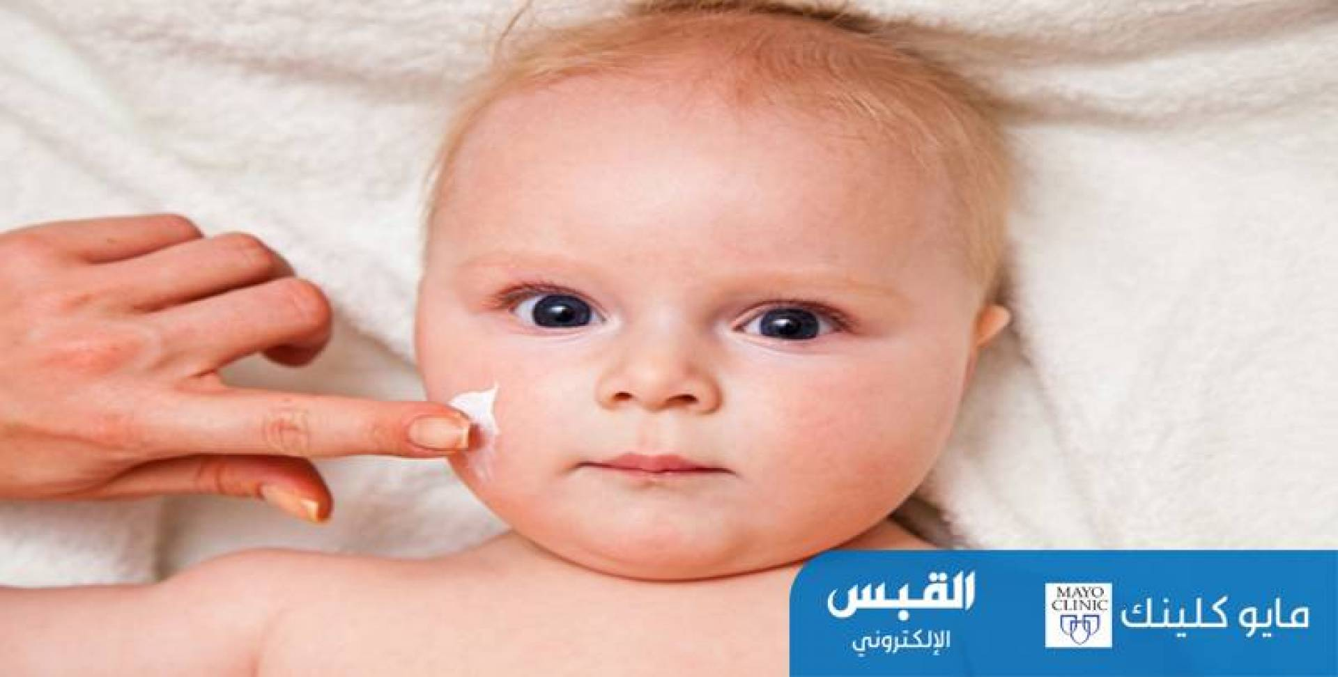 كيف يمكنني علاج الإكزيما لدى الرضع؟