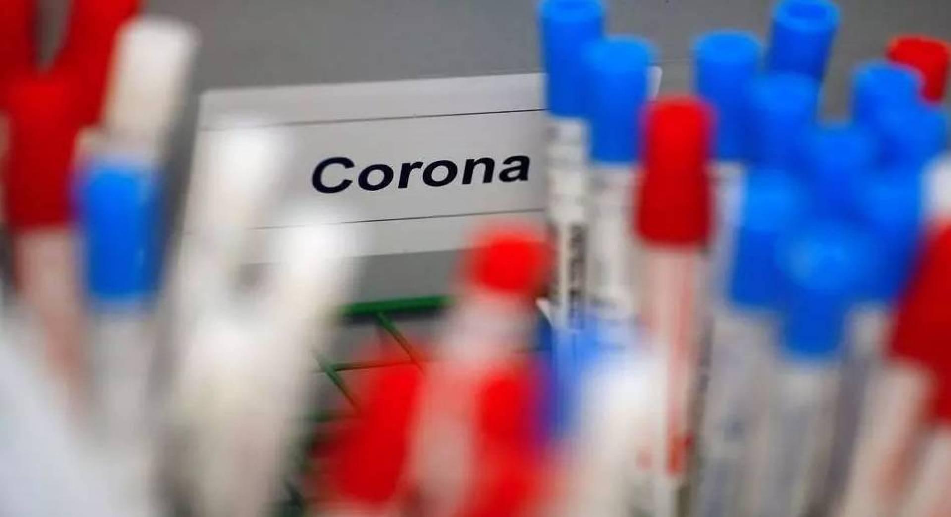 فيروس كورونا: البحث عن اللقاح يعمق الانقسامات بين الدول