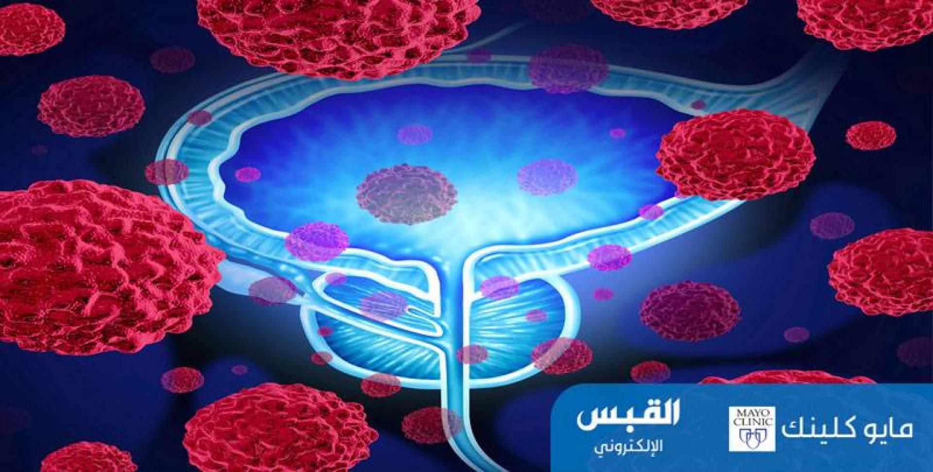 6 أعراض للمرحلة الرابعة من سرطان البروستاتا