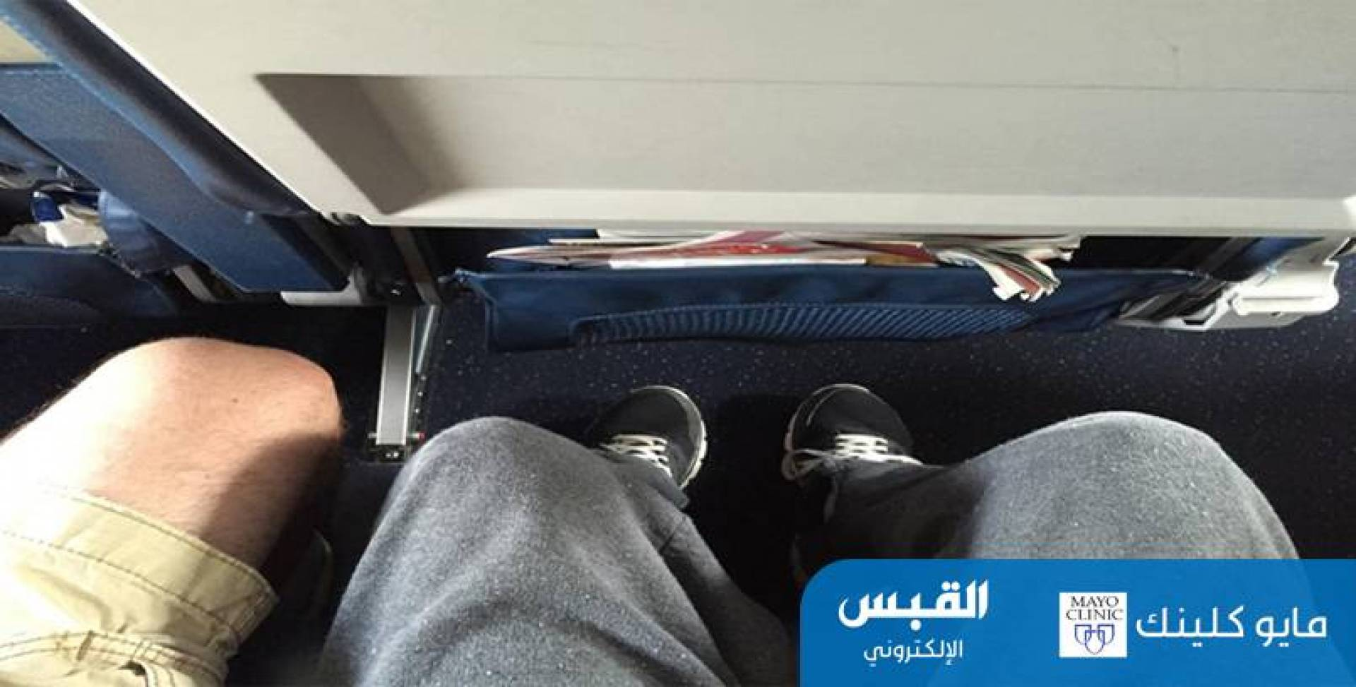ما أسباب تورم الساق والقدم أثناء السفر؟