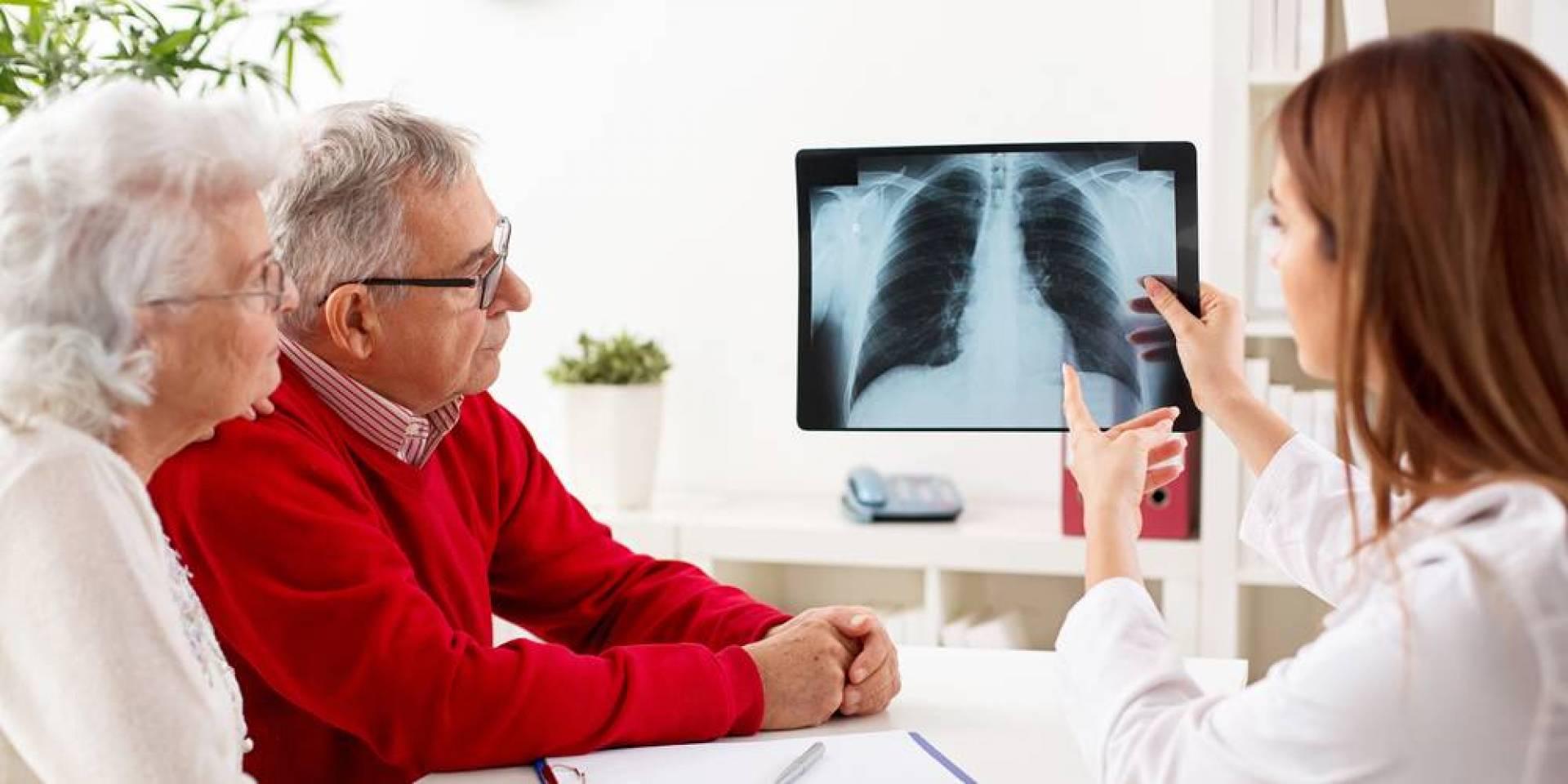 انخفاض معدل وفيات سرطان «الرئة».. للمرة الأولى