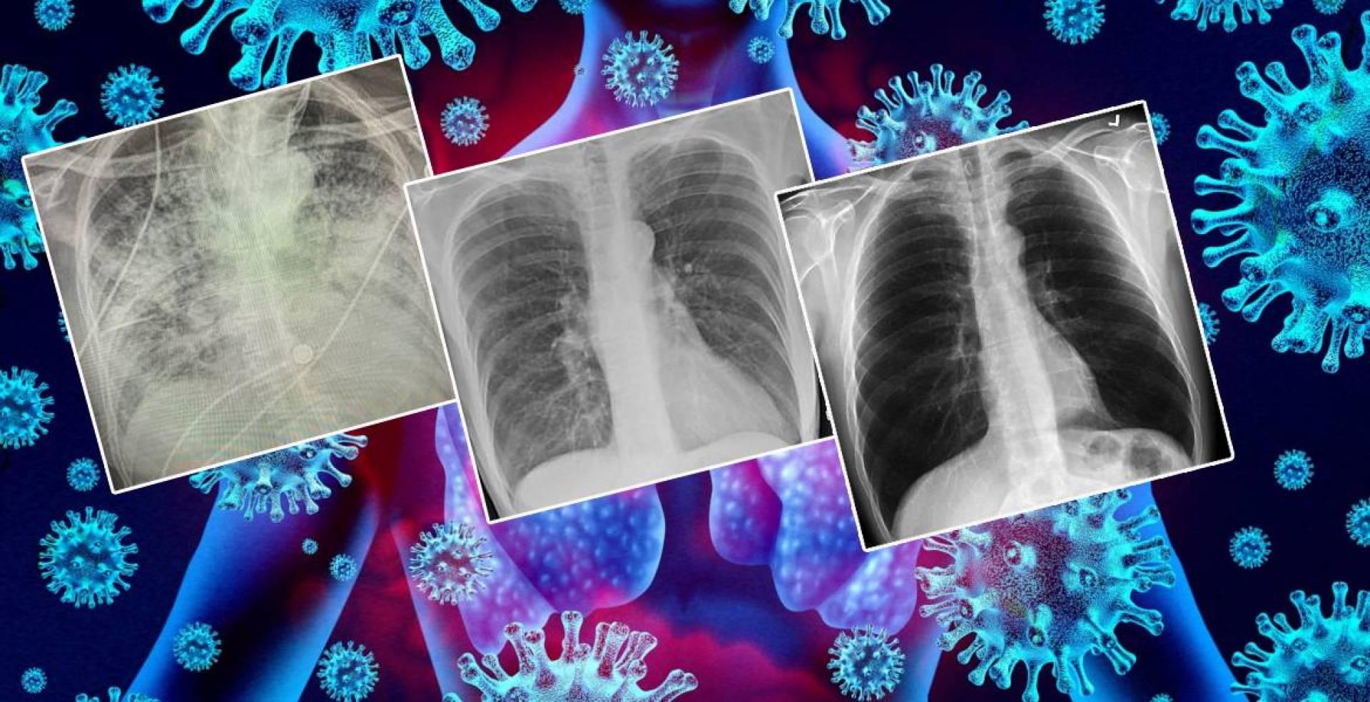 صور بالأشعة تُظهر أن رئة المصاب بكورونا تُصبح أسوأ من رئة المدخنين